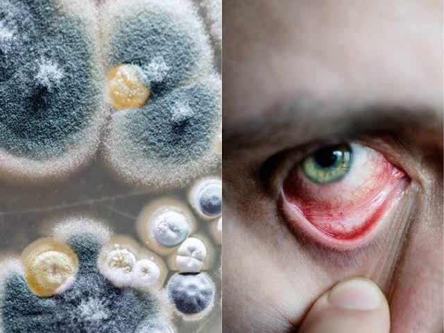 Black Fungus Mucormycosis Symptoms and Treatment